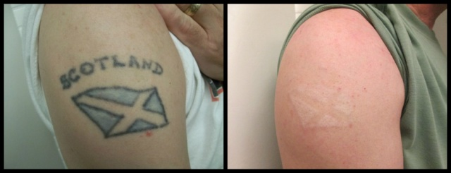 Laser tattoo removal before after photos vanish laser for Vanish ink laser tattoo removal