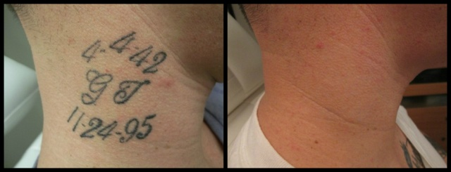 Shreveport LA Laser Tattoo Removal   Vanish Laser Aesthetics