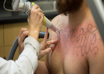 International Daily Tattooshop News   PicoWay Laser Tattoo Removal ...